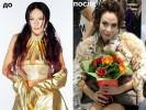 Марина Хлебникова сделала неудачную пластическую операцию
