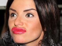Юлия Волкова и ещё 7 российских знаменитостей с ужасными губами